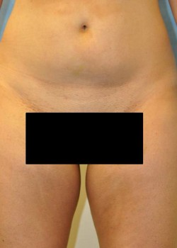 Liposuction – Case 6