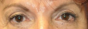 Blepharoplasty – Case 8